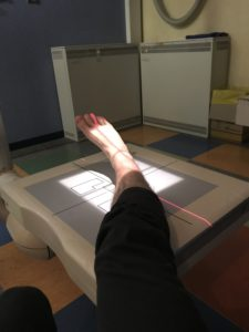 Getting my leg x-rayed in a Rome hospital while backpacking Europe